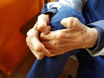 Limb damage caused by leprosy