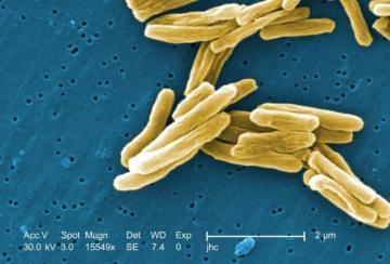 Mycobacterium tuberculosis (credit: CDC)